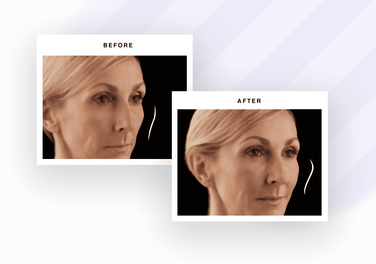 When to Choose Fillers